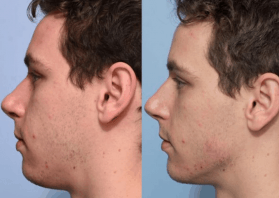 Before and after jawline and chin fillers 600x600 1 400x284 1