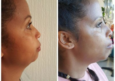 chin and jawline before and after 400x284 1